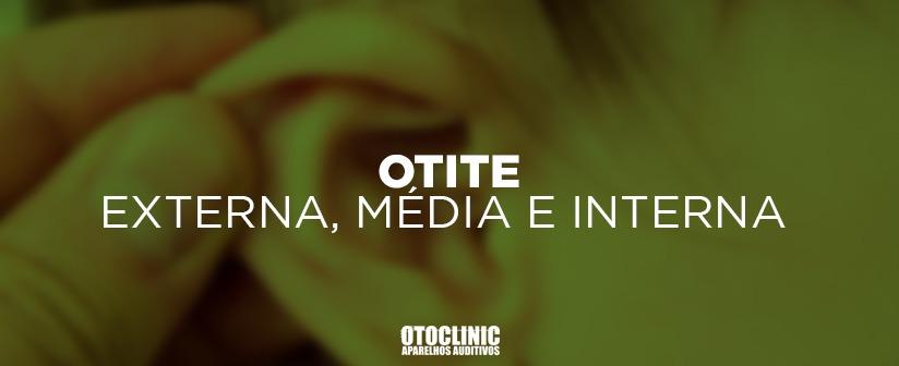 Otite: Externa, Média ou Interna. Descubra tudo sobre essa dor no ouvido